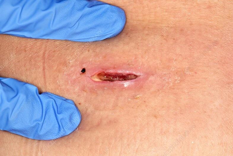 Uma das formas de tratamentos para abscesso é fazer a drenagem do pus através de cirurgia