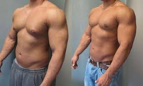 ginecomastia antes e depois