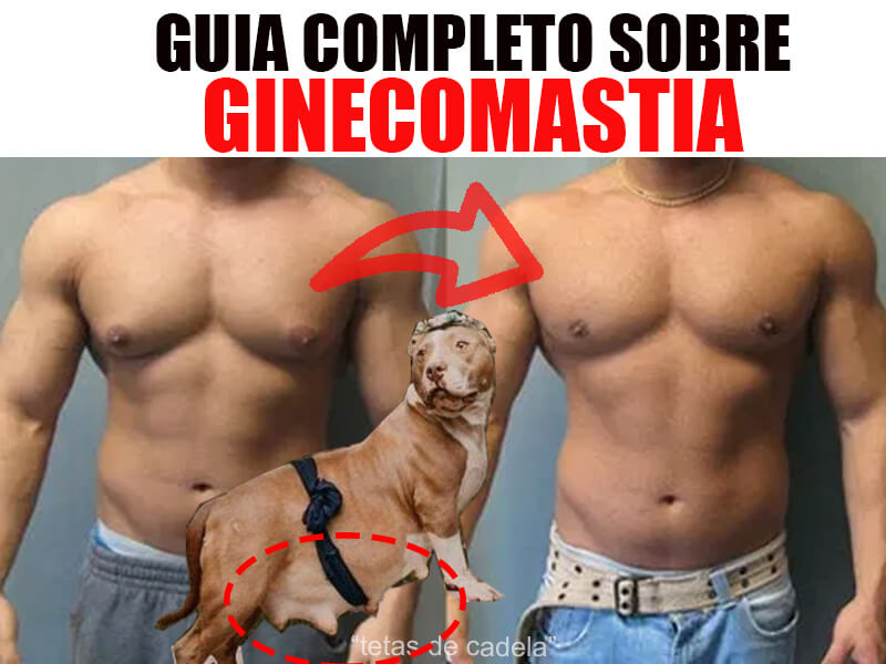 ginecomastia masculina - guia completo, tudo sobre ginecomastia
