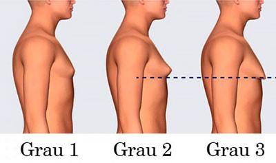graus de ginecomastia