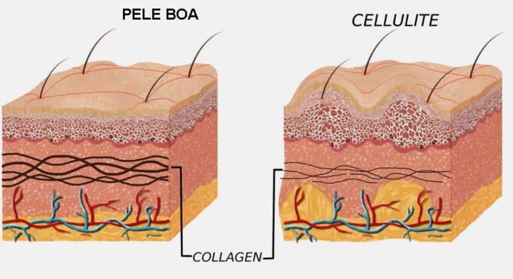 como acabar com a celulite? suplemento colageno