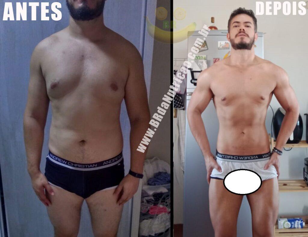 antes e depois lipomastia