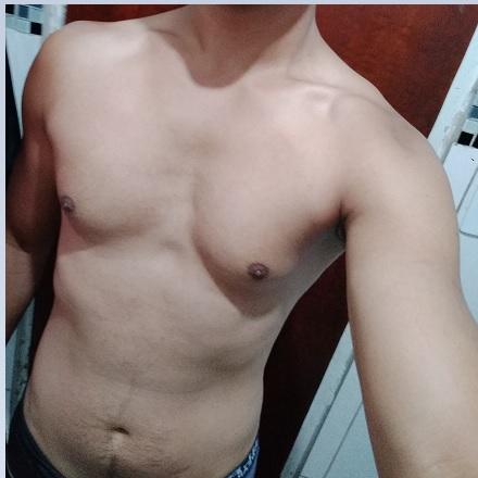 lipomastia gordura no peito