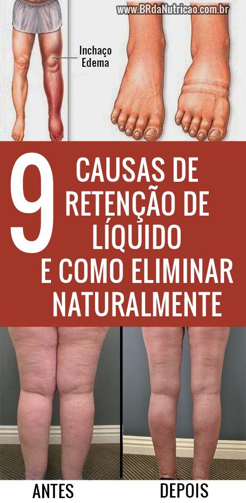9 causas de retenção de líquido